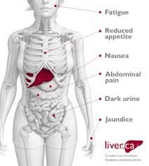 Hepatitis 10