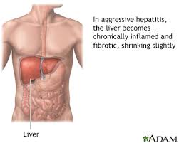 Hepatitis 5