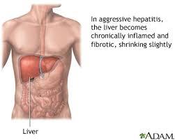 Hepatitis 5